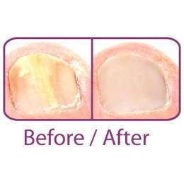 Nailclin Anti Fungal Nail Treatment 4ml